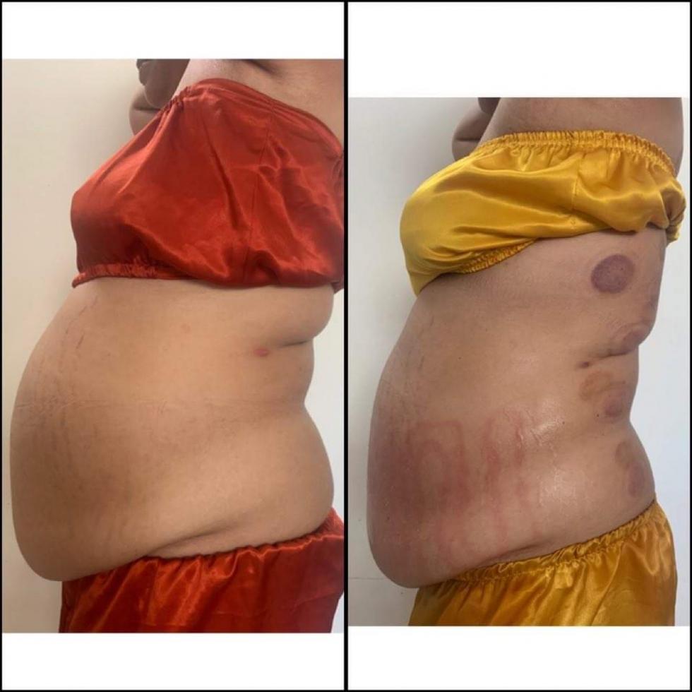 Phương pháp giảm béo hiệu quả không dùng thuốc